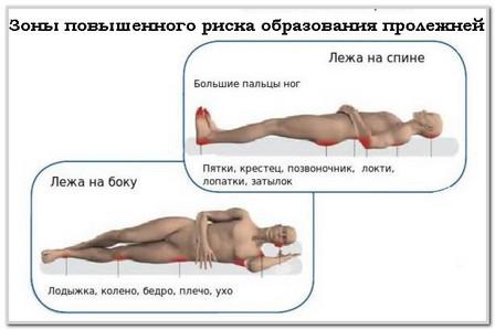 Пролежни. причины, стадии, профилактика и лечение пролежней у лежачих больных.