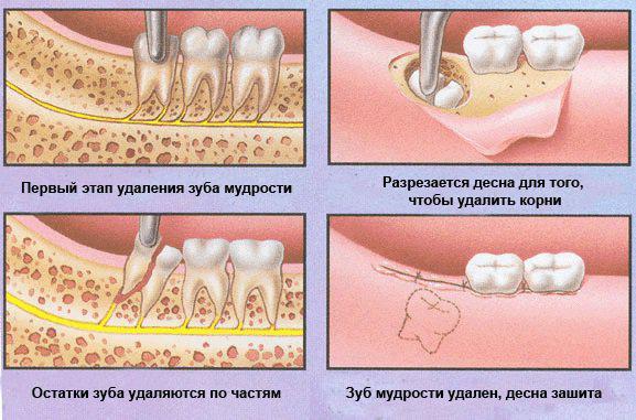 Удаление зубов мудрости. правила и рекомендации.