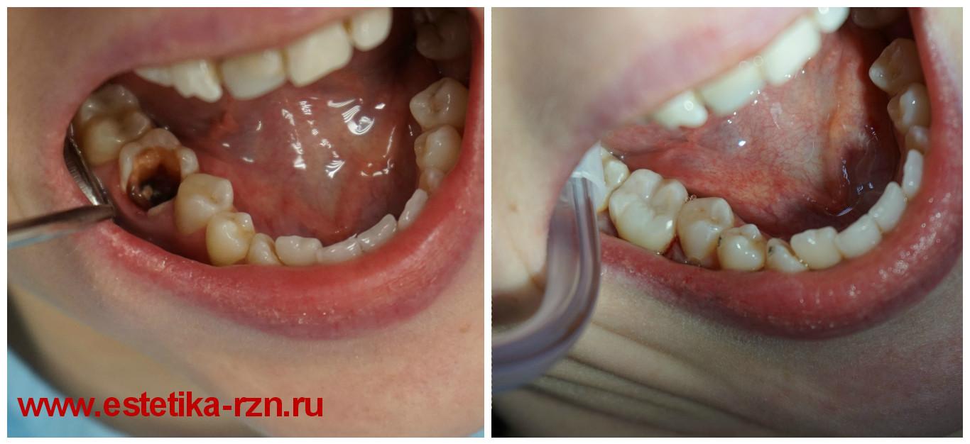 Восстановление культи зуба под коронку — материал для зубной реставрации, цены в москве