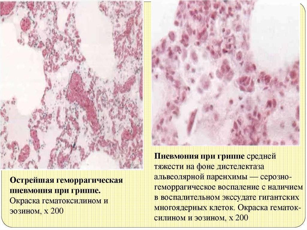 Вирусная пневмония: симптомы у детей и взрослых, лечение