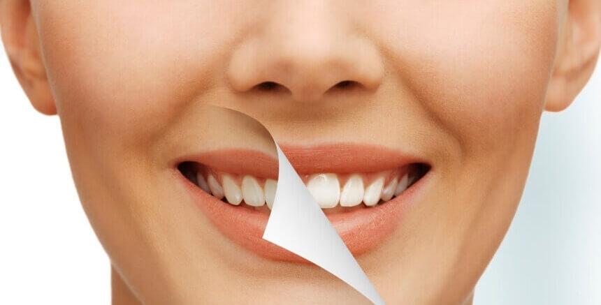 Разновидности лазерного отбеливания зубов, преимущества и недостатки
