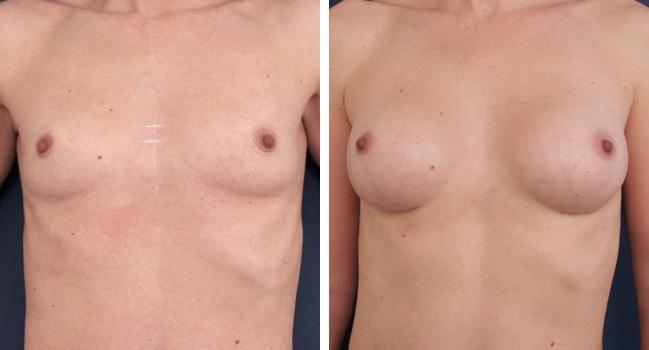 Обвисшая грудь что делать. как укрепить мышцы груди. почему грудь обвисает