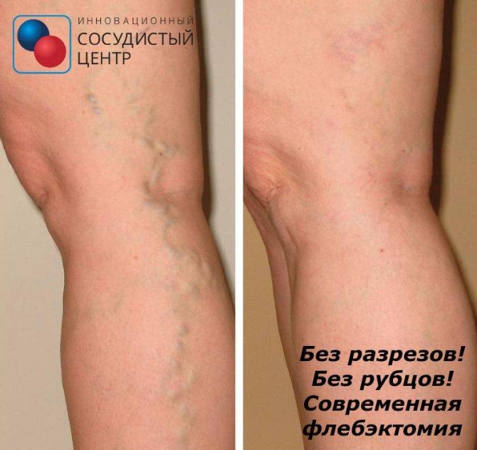 Изменение пигментации кожи (дисхромия кожи)