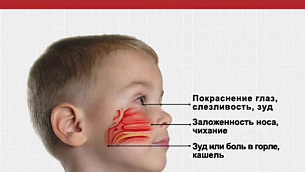Аллергический ринит: симптомы и лечение у взрослых