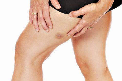"""""""синяки без причины на ногах у женщин: почему появляются и, что делать?"""""""