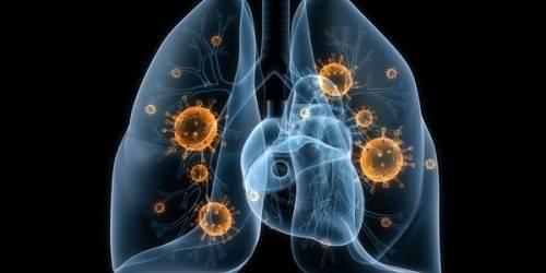 Пневмония: симптомы, признаки и лечение у взрослых и детей. протекание пневмонии без температуры