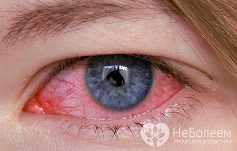 Возвращаем глазам нормальный вид: методы лечения конъюнктивита у детей и перечень препаратов