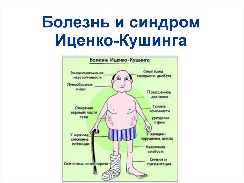 Синдром кушинга: симптомы, признаки, прогноз — онлайн-диагностика