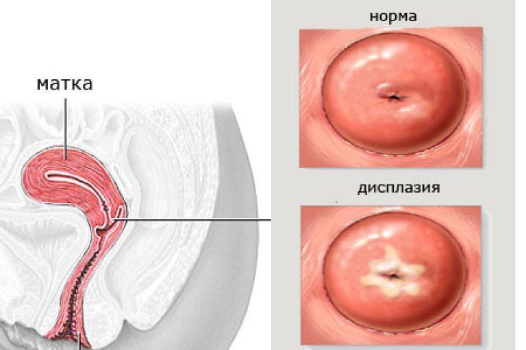 Симптомы и лечение дисплазии шейки матки в зависимости от степени онкологии