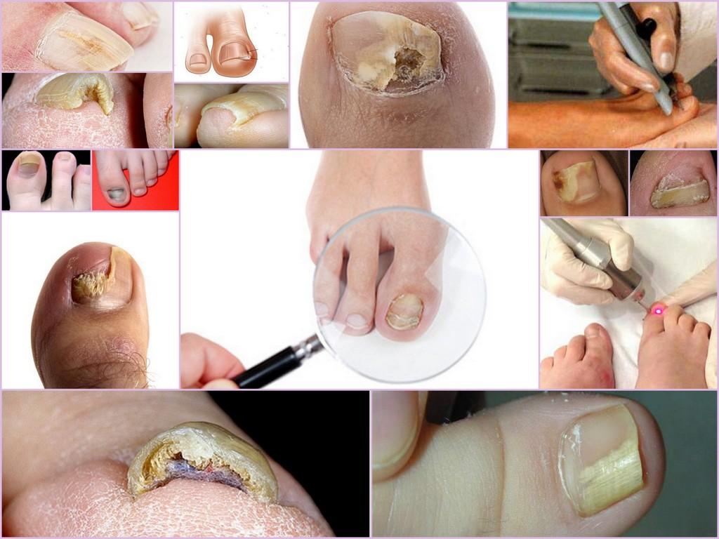 Российские аналоги лака лоцерил от грибка ногтей на ногах