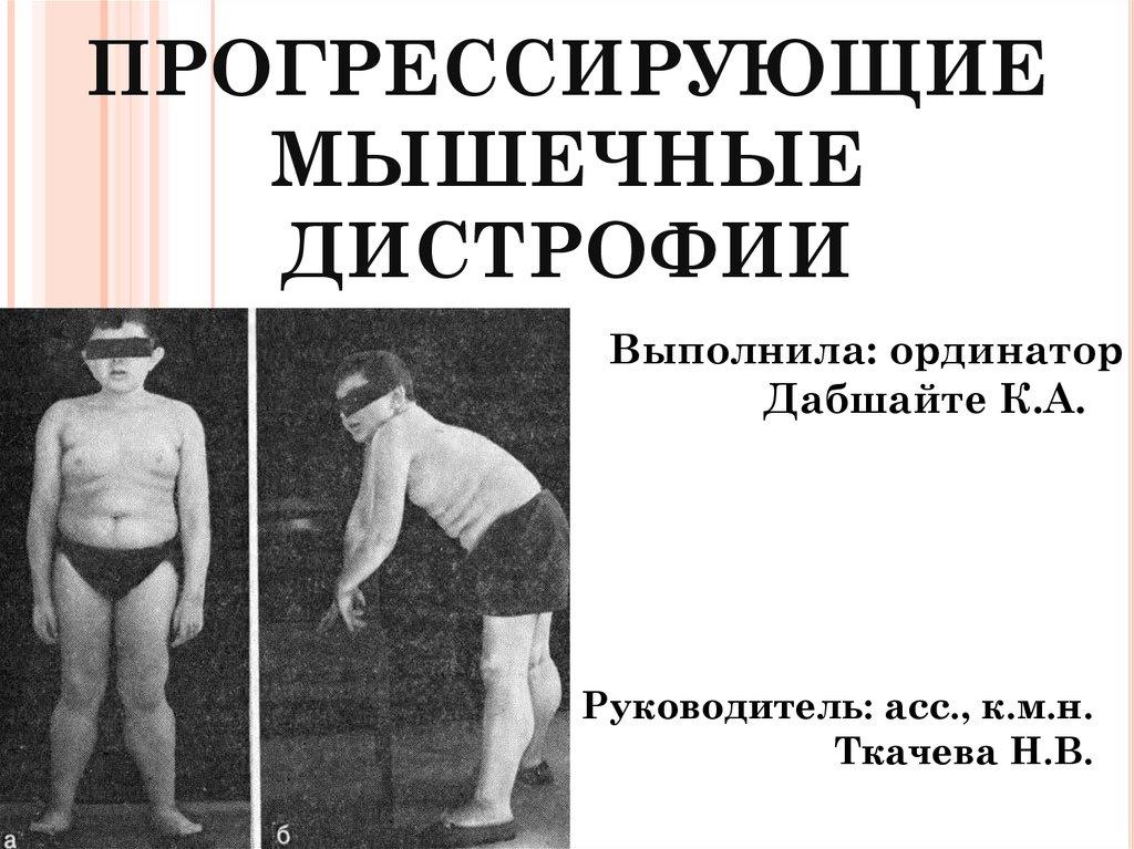 Миопатия дюшенна лечение