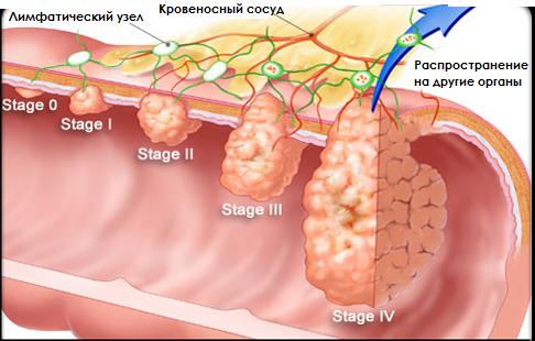 Метастазы в брюшной полости прогноз срока жизни отзывы