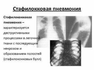 Очаговая пневмония – симптомы, лечение, возможные осложнения
