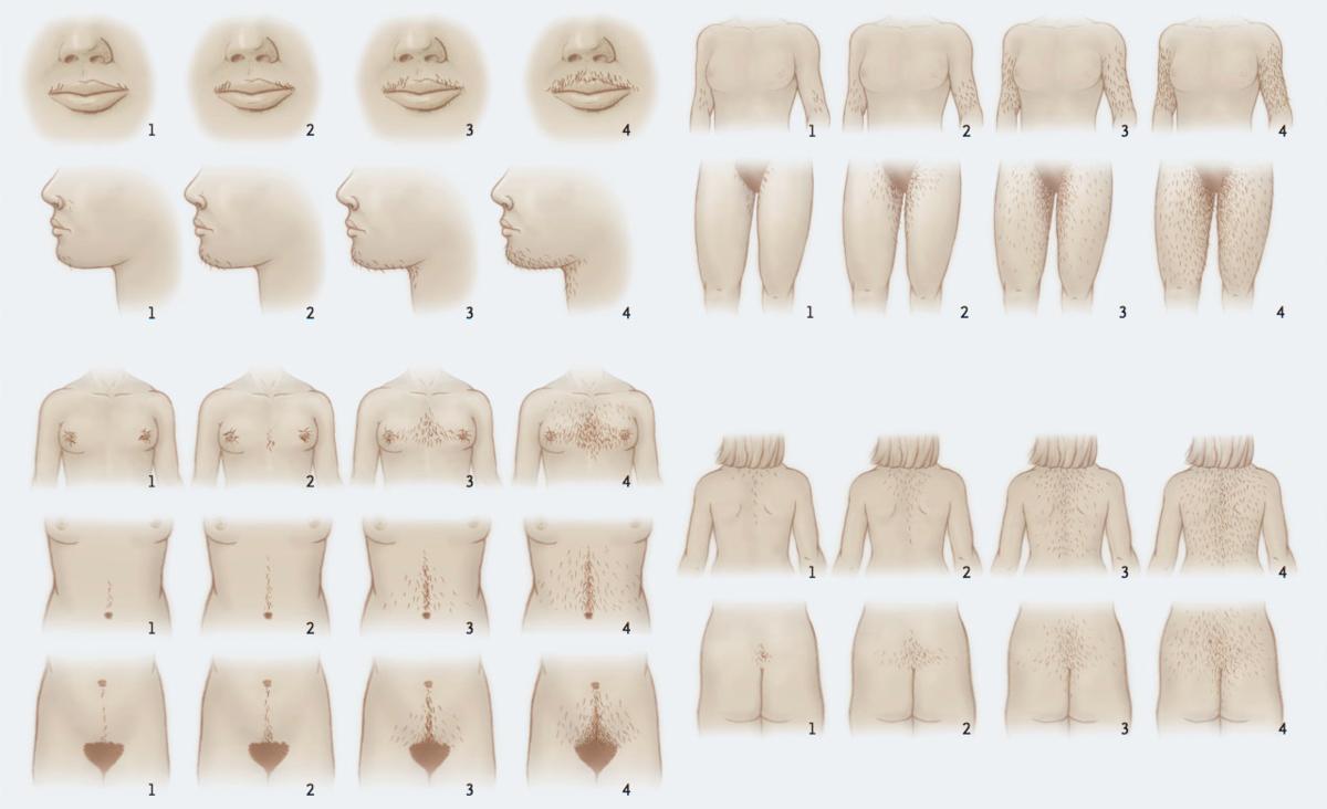 Гирсутизм у женщин – что это такое, и как можно справиться с проявлениями болезни?