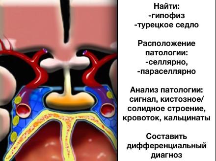 Мрт гипофиза. | лучевая диагностика