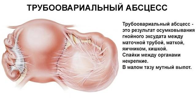 Аднексит: симптомы, виды, причины и лечение сальпингоофорита