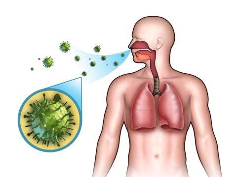 Пневмония заразна или нет: как передается, инкубационный период