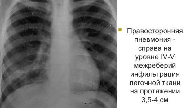 Отличительные особенности и симптомы верхнедолевой пневмонии, чем опасна такая форма воспаления легких