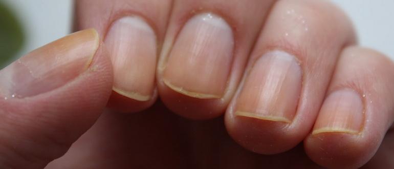 Заусенцы на пальцах рук: чем лечить, как избавиться