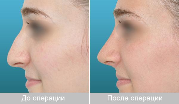 Ринопластика – красивый нос всем к лицу