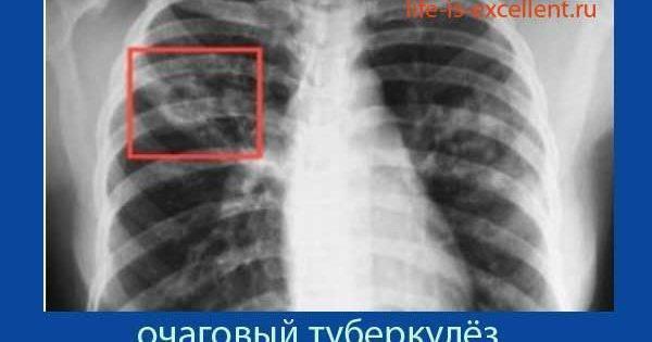 Очаговый туберкулез легких – симптомы, заразен или нет для окружающих