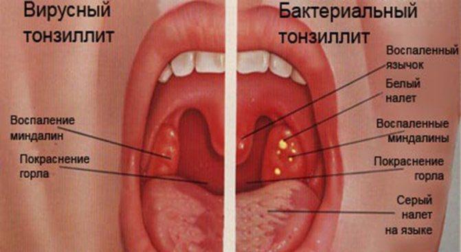 Хронический тонзиллит: симптомы и лечение у взрослых