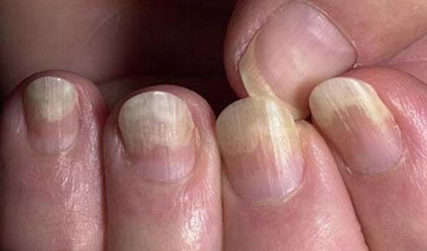 Формы ногтей при различных заболеваниях. изменения размера и внешнего вида. фото