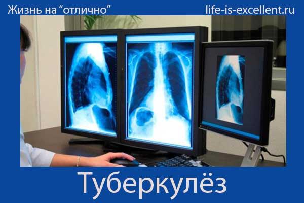 Туберкулез заразный или нет: разбираемся окончательно!