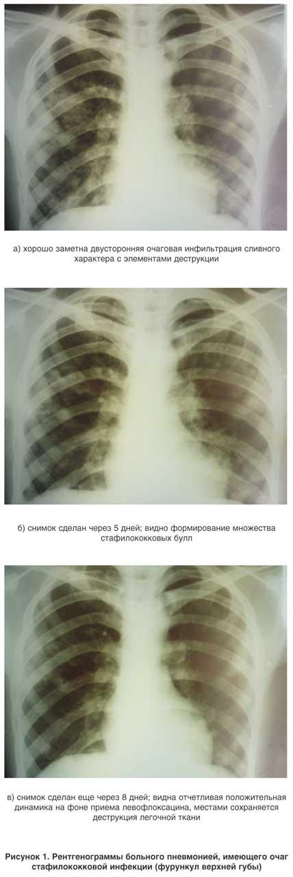 Двухсторонняя пневмония: лечение и симптомы, опасность