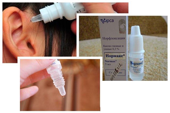 Нормакс — препарат для глаз. инструкции, показания, отзывы и аналоги