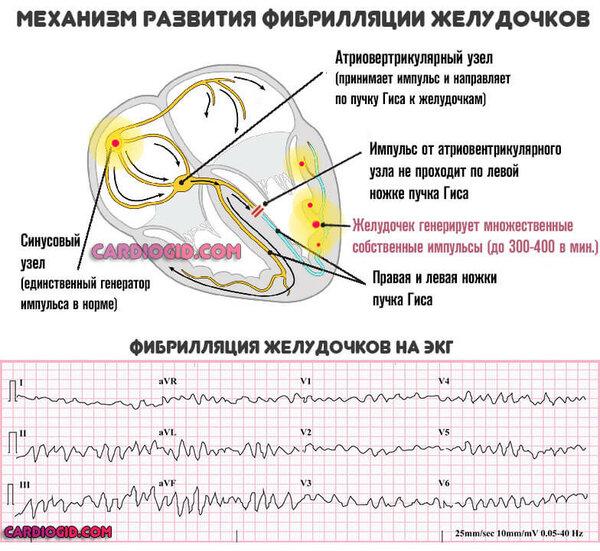 Первые признаки и симптомы инфаркта у мужчин (предынфарктное состояние): что нужно знать?