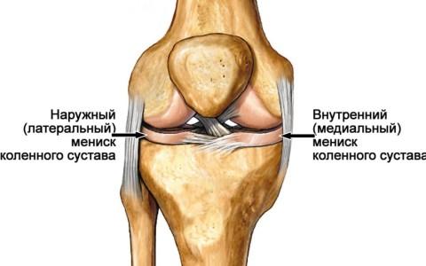 Повреждение латерального мениска коленного сустава - лечение с операцией и без