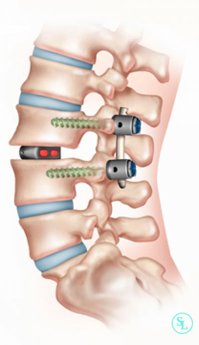 Спондилодез позвоночника (межтеловой) – задний, передний