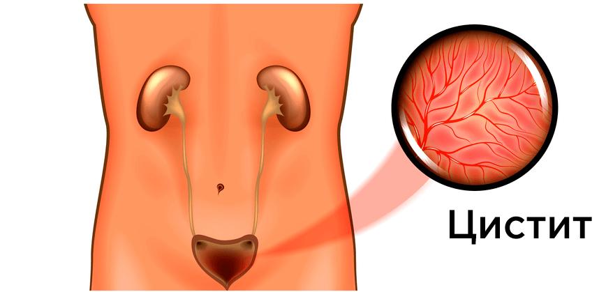 Белые выделения из уретры у мужчин: виды и лечение