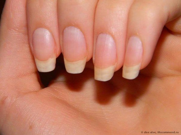 Советы специалистов: что делать чтобы ногти росли быстрее?