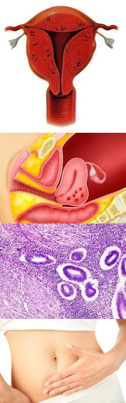 Аденомиоз: лечение гормонами