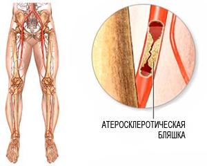 Облитерирующий эндартериит сосудов нижних конечностей: своевременная диагностика и лечение