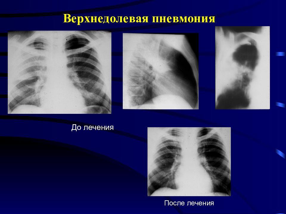 Правосторонняя нижнедолевая пневмония: симптомы и лечение у ребенка и взрослого