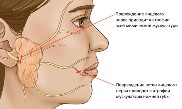 Паралич лицевого нерва симптомы и лечение
