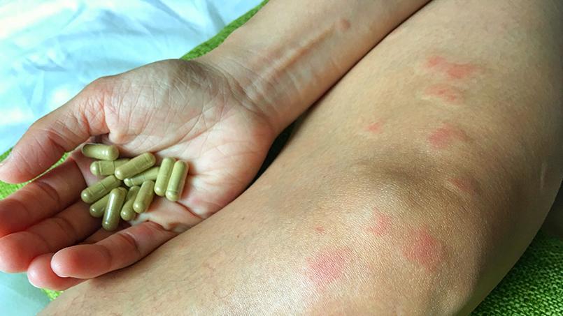 Системная красная волчанка (скв) – причины, патогенез, симптомы, диагностика и лечение.