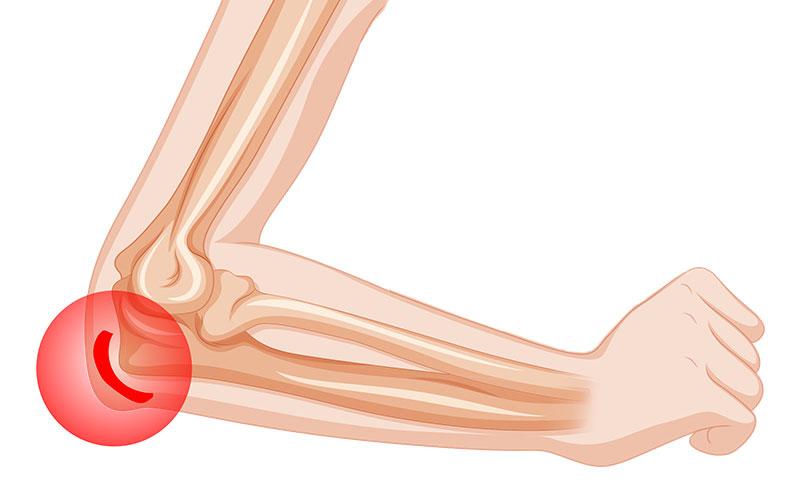 Серозный бурсит: симптомы и лечение опасного заболевания суставов