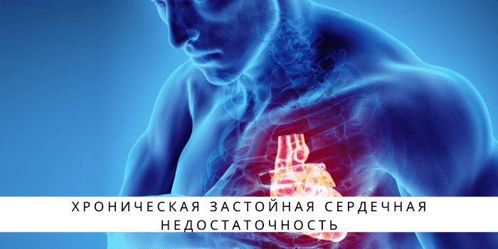 Что такое вирусный миокардит? симптомы, причины развития, методы лечения взрослых и детей