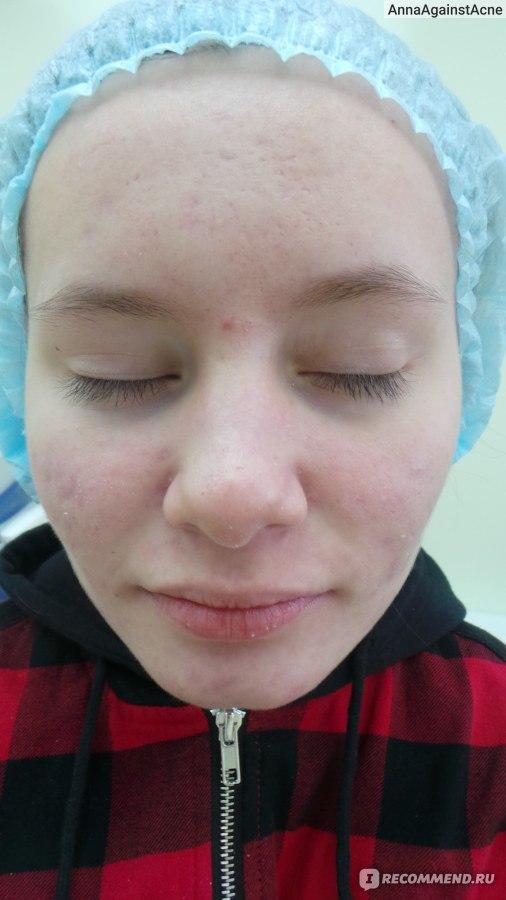 Акнекутан: мечты о здоровой коже сбываются