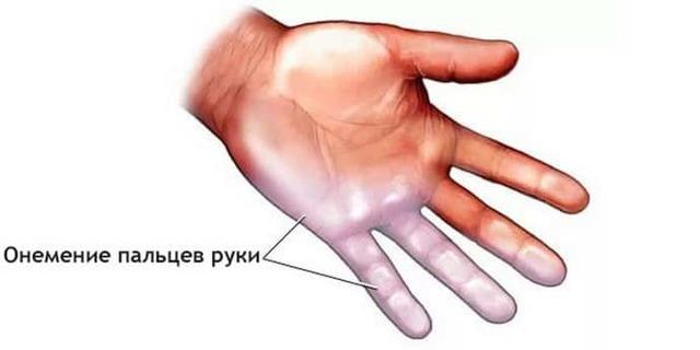 Почему немеют пальцы рук при беременности: причины, симптомы и лечение