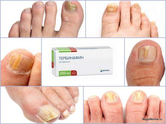 «тербинафин»: инструкция по применению и отзывы