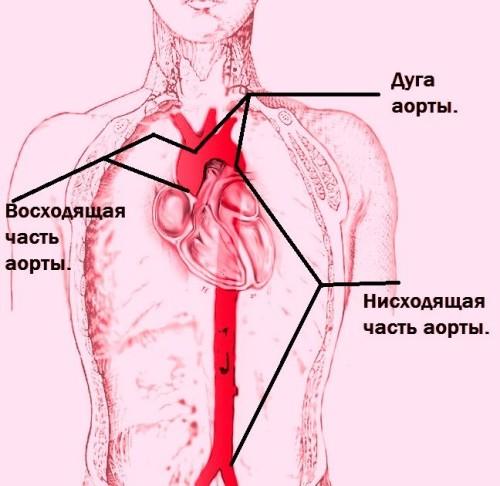 Аневризма аорты: симптомы и лечение