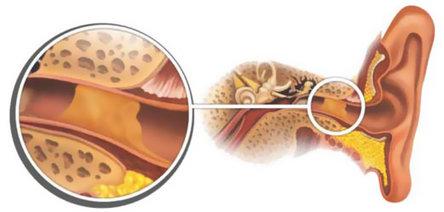 Серная пробка в ухе: симптомы, удаление в домашних условиях