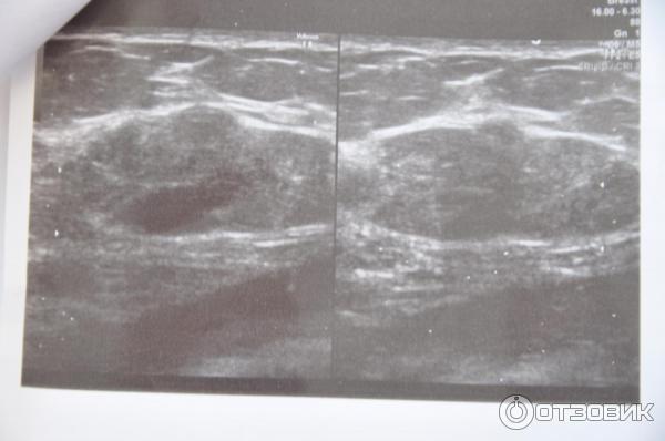 Фиброаденома молочной железы — как отличить от рака?