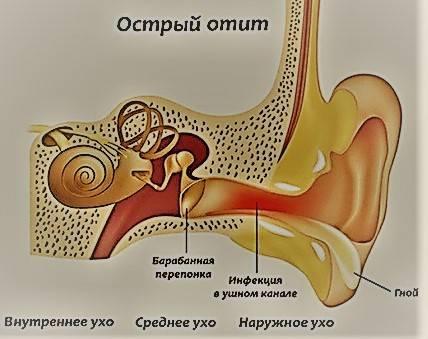 Стреляет ухо: причины, чем лечить в домашних условиях взрослому и ребенку
