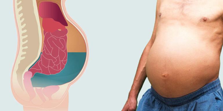 Метастазы рака желудка